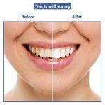 brosse a dent electrique pour blanchir les dents TOP 2 image 1 produit