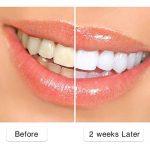 Brosse à dents électrique pour adulte, brosse à dents rotative rechargeable blanchissant en 14 jours, étanche, avec 1 tête de brossage ronde, modèle 2209 noir de la marque Sboly image 3 produit